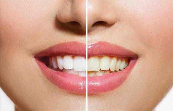 Fakta Tentang Tren Pemutih Gigi Instan Dan Risikonya