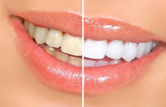 7 Tips Alami Untuk Gigi Lebih Putih