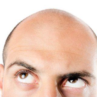 Terobosan Untuk Pria Botak