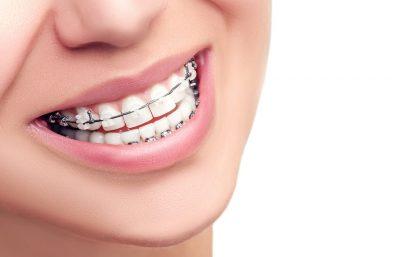 5 Hal Yang Perlu Diwaspadai Terhadap Gigi Anda Selama Kehamilan
