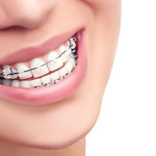 Cara Mudah Merawat Gigi Berkawat