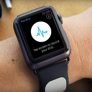 AliveCor Kardia Band