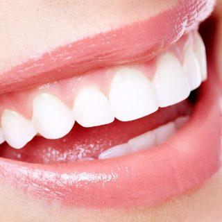 Senyum: Bagaimana Cara Menjaga Gigi Anda